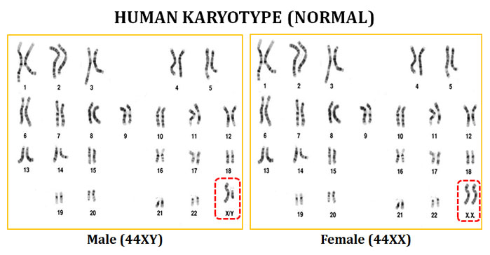 karyotype analysis of human chromosome easybiologyclass. Black Bedroom Furniture Sets. Home Design Ideas
