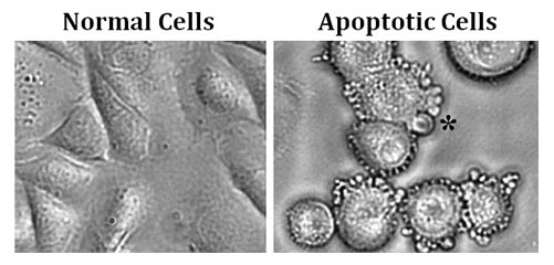 features of apoptotic cells