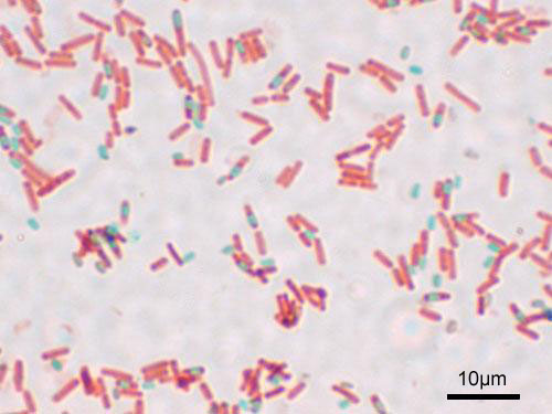 Endospores of bacillus