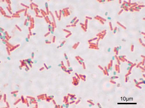 Endospores of bacillus
