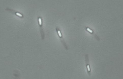 Endospore of bacteria