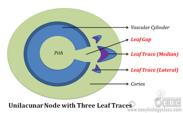 Unilacunar Node with Three Traces